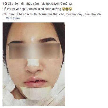 Loi khuyen gui chi em cua co gai Ha Noi vua tham my xong lai chiu dau de go het don cam, thao mui, nao silicon o moi - Anh 4