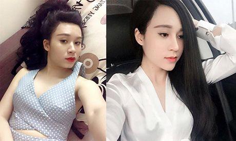 Loi khuyen gui chi em cua co gai Ha Noi vua tham my xong lai chiu dau de go het don cam, thao mui, nao silicon o moi - Anh 6