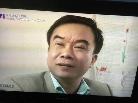 Sao phim 'Thoi xa vang' bi ung thu gan, sut 15kg/thang - Anh 1