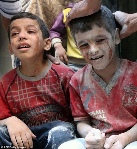 Am anh canh be trai Syria bi vui lap boi bom dan - Anh 6