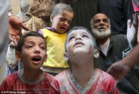 Am anh canh be trai Syria bi vui lap boi bom dan - Anh 7