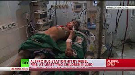 It nhat 5 tre em thiet mang trong cuoc ban pha tai Aleppo - Anh 1