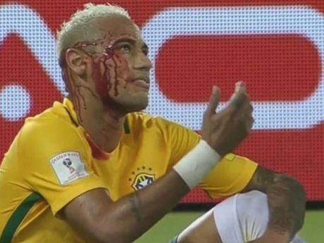An don do mau, Neymar tuyen bo khong thay doi cach choi - Anh 1