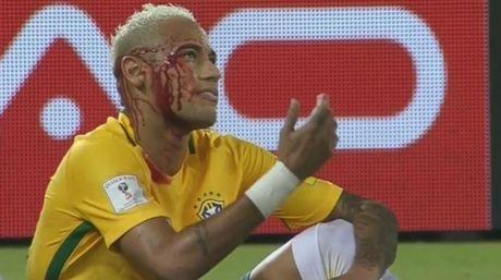 An don do mau, Neymar tuyen bo khong thay doi cach choi - Anh 2