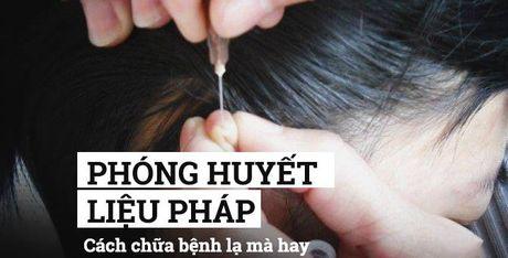 Phong huyet lieu phap: Cach chua benh 'ky dieu' cua nguoi xua - Anh 1
