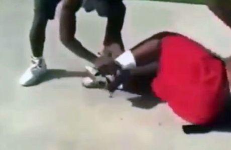 Khung khiep canh tay truot van gay quat chan do lan dau thu dia hinh vong cung - Anh 3