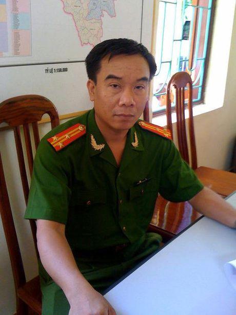 Them mot nghe si Viet qua doi vi can benh ung thu - Anh 1
