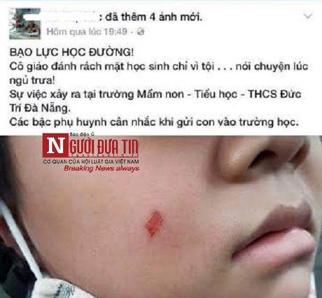 Dinh chi 1 thang, phat 5 trieu co giao lam tray ma HS tai Da Nang - Anh 1