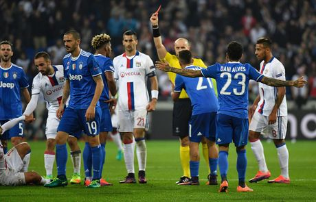 Buffon can pha 11 m, Juventus thang trong tran mat nguoi - Anh 7
