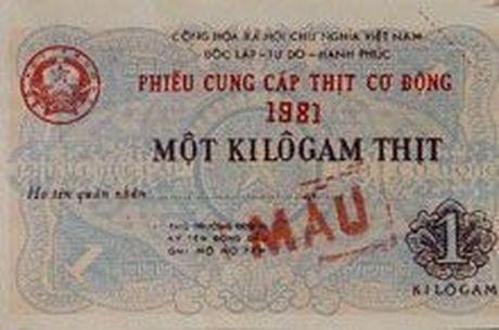 Anh cuc hiem ve mau dich thoi bao cap o Viet Nam - Anh 14